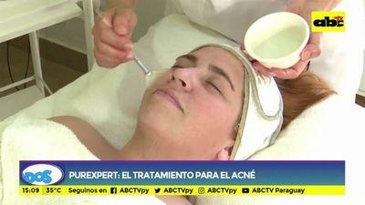 Purexperet: el tratamiento para el acné