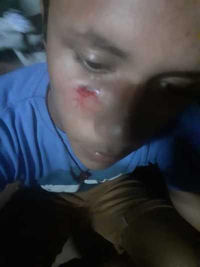 Arroyito: Jóvenes manifestantes fueron atacados por seguidores de Intendente