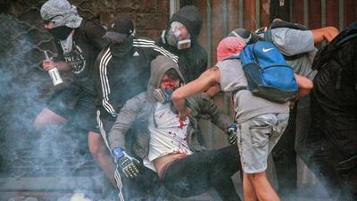 Chile admite posibles abusos, pero rechaza que haya una política de represión