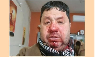 Intendente de Guazú Cuá atropelló con arma la casa de su expareja, denuncian. Ya está detenido