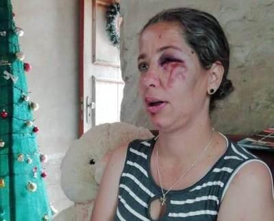 En aparente intento de asalto, mujer es derribada de una moto