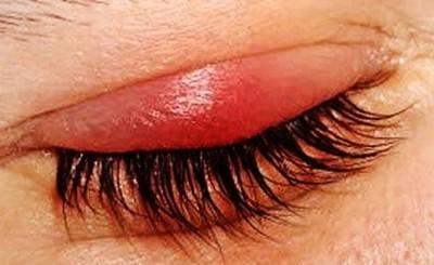 Orzuelo: una enfermedad relacionada a la higiene