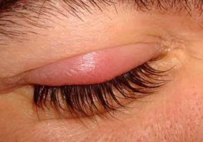 Definición, causa y tratamiento: Todo lo que debés saber acerca del Orzuelo