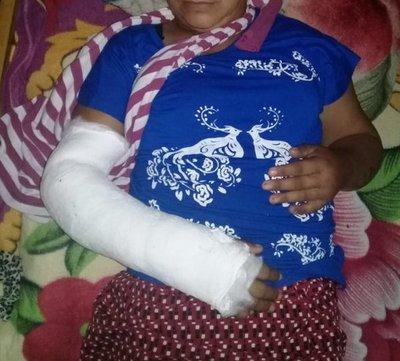 Mujer queda hospitalizada tras brutal agresión de su pareja en Caaguazú