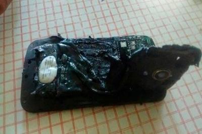 Joven argentino con quemaduras graves tras explotar su teléfono mientras dormía