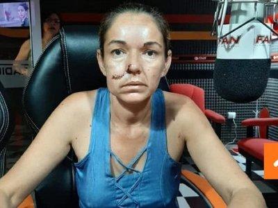 Irracional odio: por ser paraguaya pareja argentina le reventó y clavó