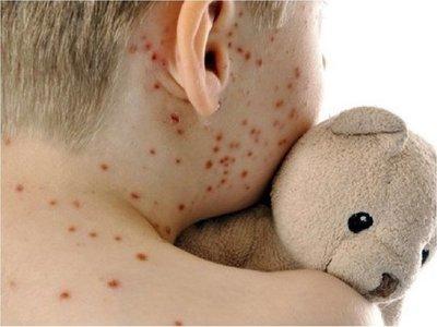 Ingreso de sarampión preocupa más que el coronavirus, dice ministro de Salud