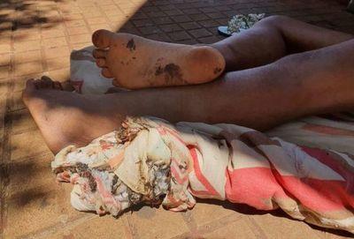 Indigente sufre quemaduras en ataque