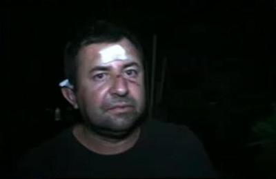 Hombre recibió una brutal golpiza por parte de sus vecinos en Limpio
