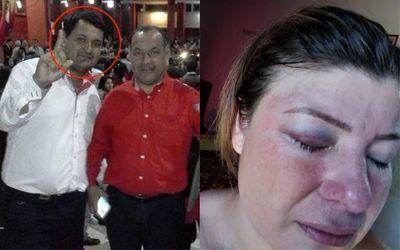 Jueza deja en libertad al hermano del intendente de Santaní que golpeó a su esposa