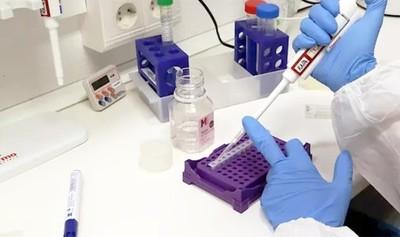 Consorcio alemán Bosch desarrolla test rápido para el coronavirus