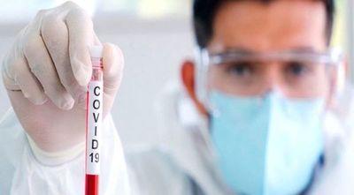 Más del 90% de pacientes con coronavirus son de Asunción y Central