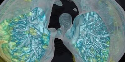 Video en 3D detalla cómo el coronavirus daña los pulmones