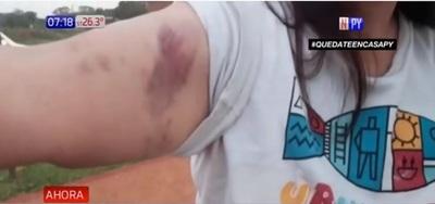 Mujer denuncia a sus vecinos por brutal agresión