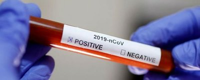 Italia estudia la pruebas de anticuerpos del coronavirus