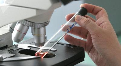Coronavirus: casos positivos suman 119