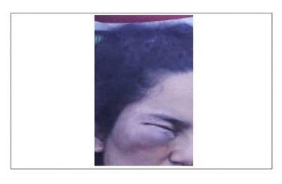 San Ignacio; mujer fue brutalmente golpeada por su pareja