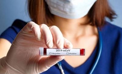 HOY / Covid-19: Funcionario de AFD dio positivo al virus y oficinas estarán cerradas