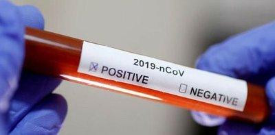 Coronavirus: elevan cantidad de pruebas y aumenta número de positivos