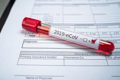 Confirman el primer caso de coronavirus en San Pedro