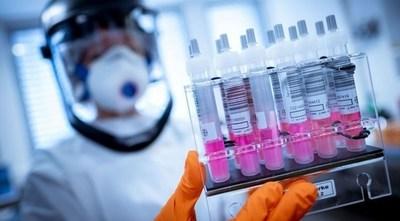 Caaguazú con 183 casos de COVID-19 es la zona con más infectados del país