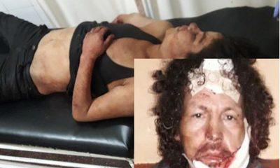 Asesinan a mujer e hieren a su pareja en Minga Guazú