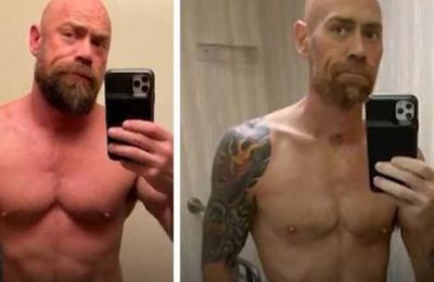 El impactante 'antes y después' de un enfermero tras contagiarse de Covid-19