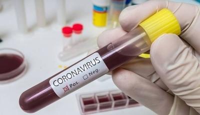 HOY / Villeta: piden ayuda al Gobierno para evitar contagio masivo de Covid-19