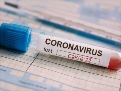 Los primeros tres clubes que se harán los test de coronavirus