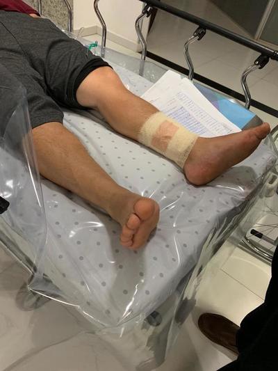 Político colorado herido por MOTOCHORROS en Franco