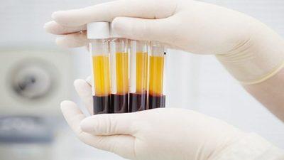 Adjudican fondos a investigación sobre plasma para tratar el Covid-19