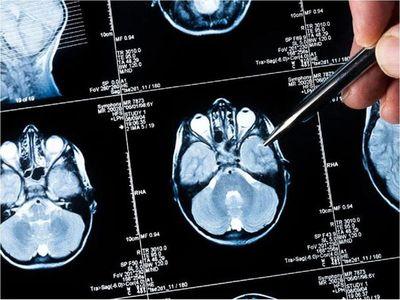 Plataforma agilizará la investigación en metástasis cerebral