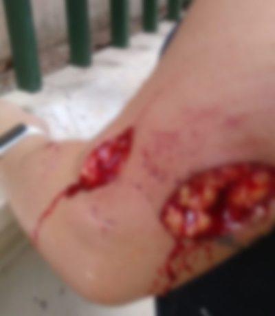 Denuncian que un perro atacó bravamente a una señora